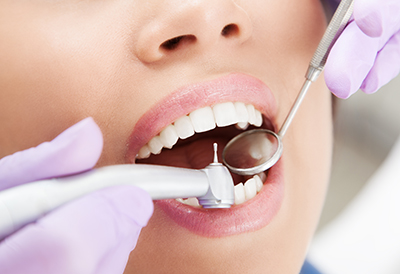 Dental-Exams-Josey-Lane-Dentistry-