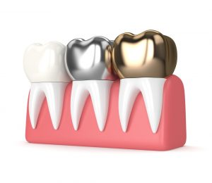 Stainless Steel Crowns Compared to Other Crowns