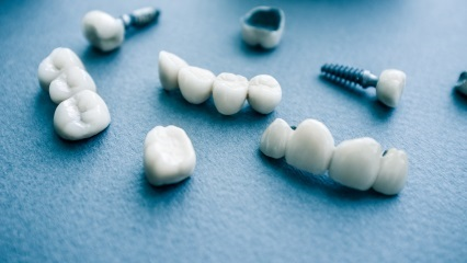 How Do I Know If It's Time for Dental Implants?